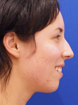 Chin Implant and Upper Lip Filler*