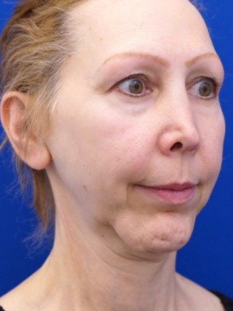 Revision Chin Implant, Mini Lift*