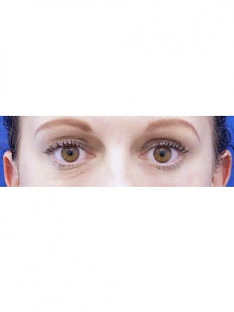 Lower Eyelid Hollow*