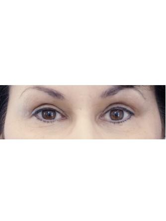 Sensual Upper Eyelids*