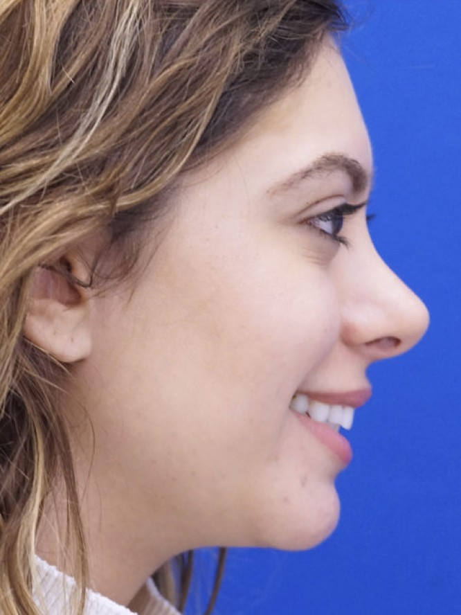 Hump Reduction and Chin Projection