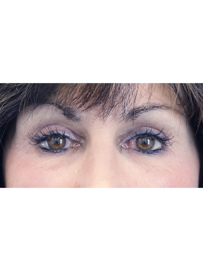 Refresh Upper Eyelid Fold