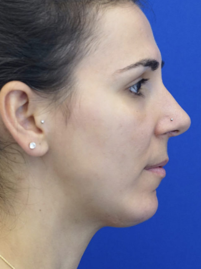 Chin and Nasal Tip Projection