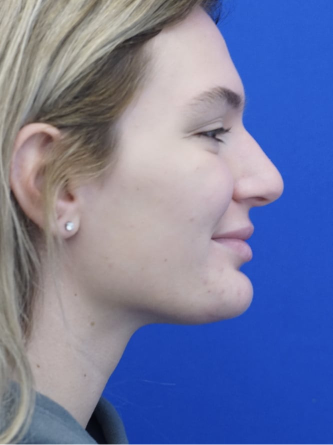 Soft Tissue Chin Reduction