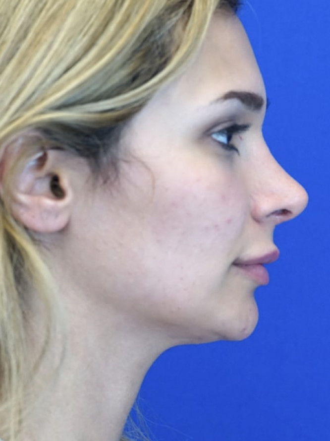 Nasal Deviation and Dainty Tip