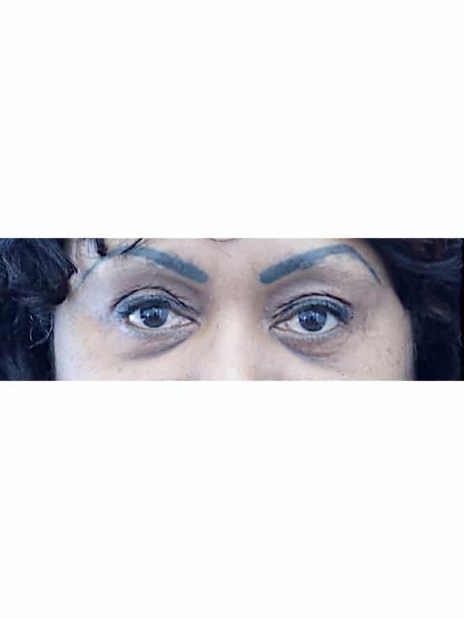 Quad Blepharoplasty Skin Only with Fat Grafting