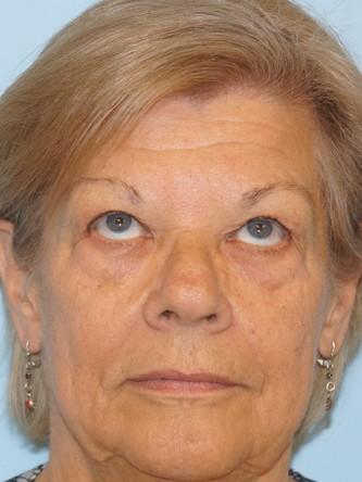 Upper Eyelid Droop and Skin Excess*