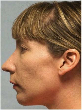 Chin Implant*